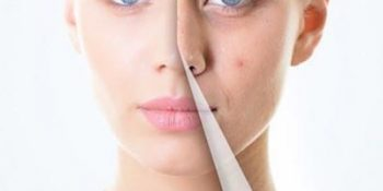 Lečenje ožiljaka od akni kombinovanom terapijom