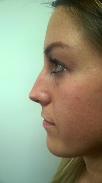 Korekcija nosa bez operacije 1
