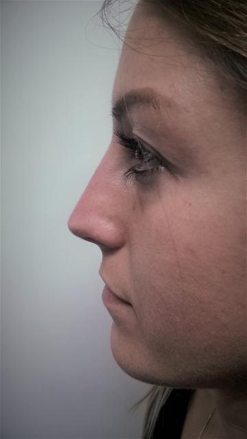 Korekcija nosa bez operacije 2