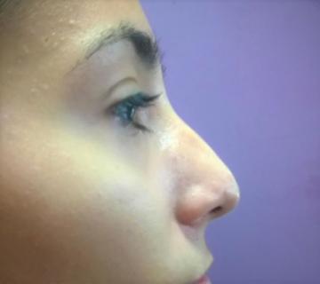 Korekcija nosa bez operacije 4