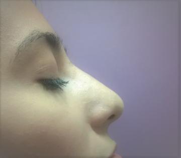 Korekcija nosa bez operacije 5