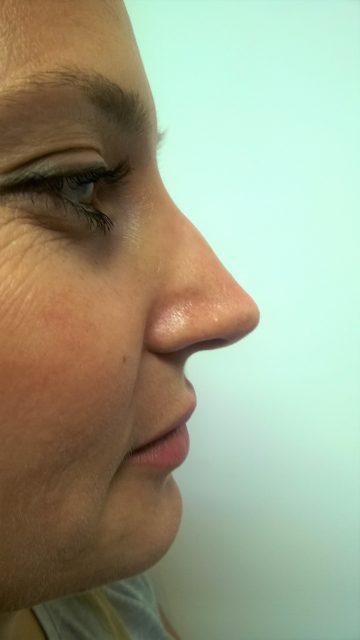 Korekcija nosa bez operacije 16