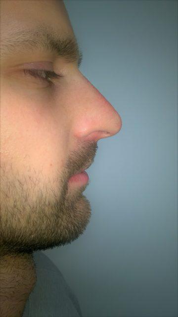 Korekcija nosa bez operacije 12