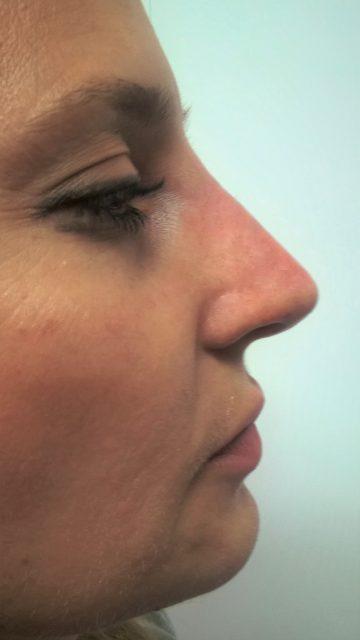 Korekcija nosa bez operacije 9