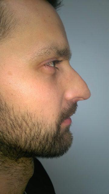 Korekcija nosa bez operacije 15