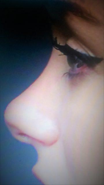 Korekcija nosa bez operacije AA