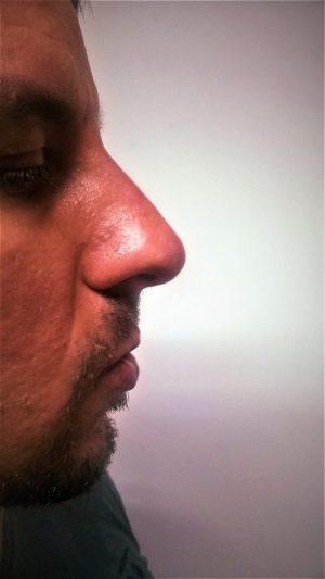 Korekcija nosa bez operacije B