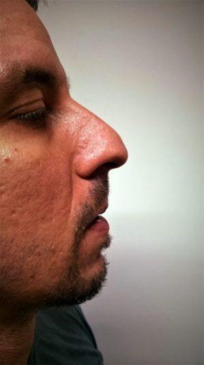 Korekcija nosa bez operacije BB