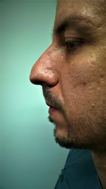 Korekcija nosa bez operacije BBB