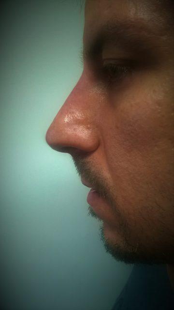 Korekcija nosa bez operacije BBBB
